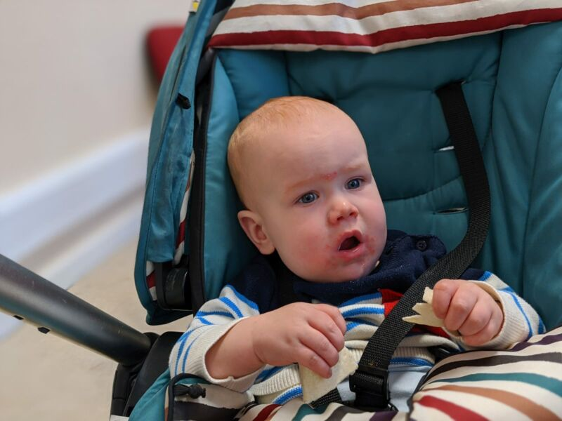 Felix sat in his pram with rash around mouth and eyes